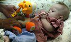 Baby Gammy / Bild: APA/EPA/RUNGROJ YONGRIT