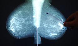 Mammografie / Bild: APA (BARBARA GINDL)