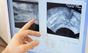 Ultraschalluntersuchung bei Prostatakrebs / Bild: Imago