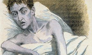 Ein Cholera-Patient, dargestellt in einem französischen Medizinbuch des Jahres 1890. / Bild: (c) Imago